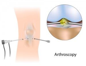 Arthroscopic Knee Surgery in Los Angeles, CA