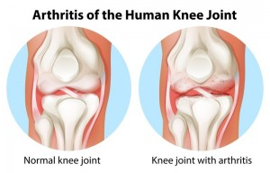Arthritis Treatment in Los Angeles, CA