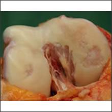 proc_img_cartilage01b