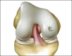 proc_img_cartilage02