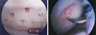 proc_img_cartilage04