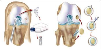 proc_img_cartilage06