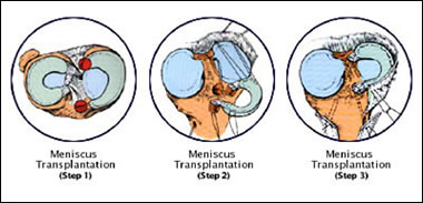 Meniscus Surgery - Los Angeles, CA | C  Thomas Vangsness, Jr , M D