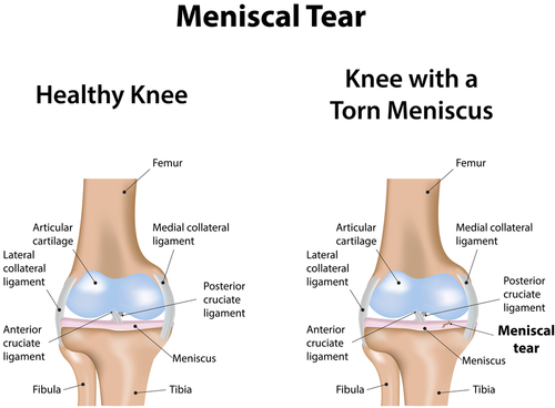 Meniscus Tear Repair, Los Angeles, CA