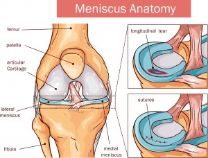 Illustration of Meniscus Tear Surgery
